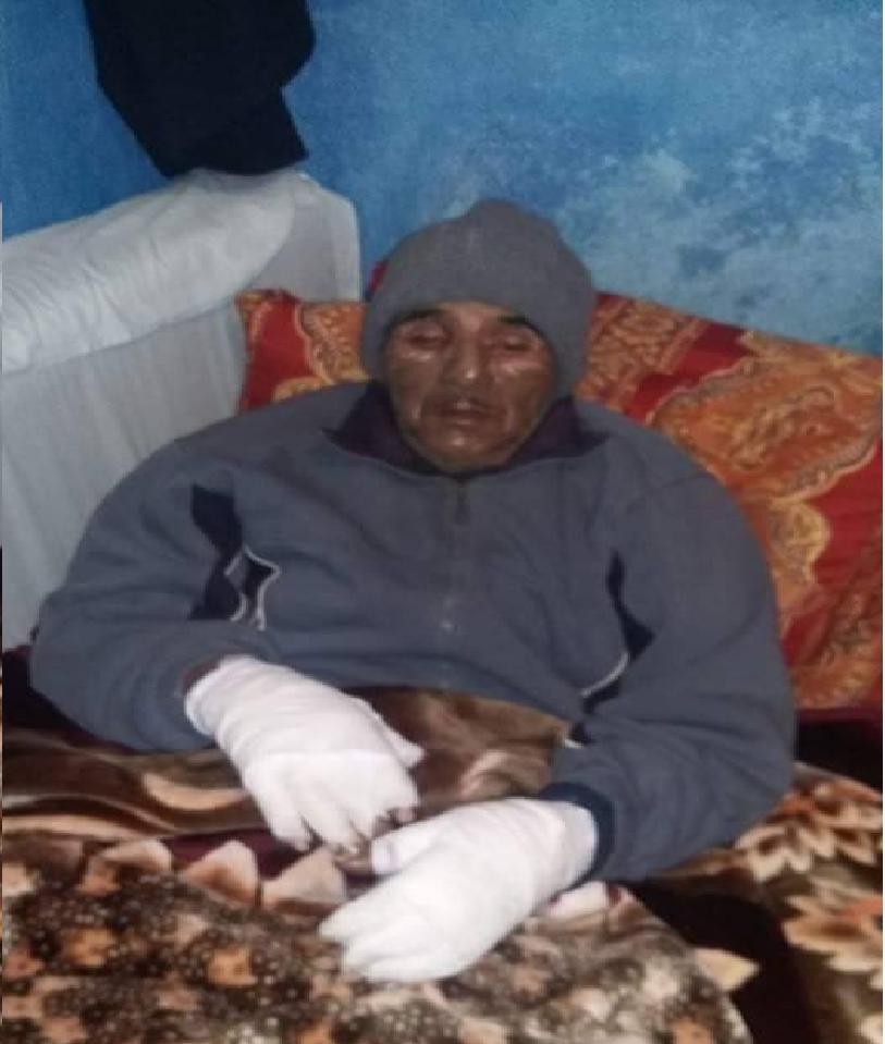 Photo of قنينات الغاز التي أكل عليها الدهر و شرب أصبحت تهدد سلامة  الأسر المغربية  ..!