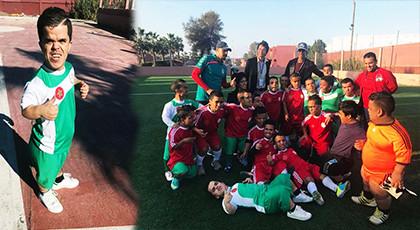 Photo of الفريق الوطني لقصار القامة يجري مباراة استعراضية